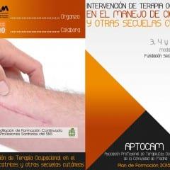 Nuevo curso: Intervención de terapia ocupacional en el manejo de cicatrices y otras secuelas cutáneas.