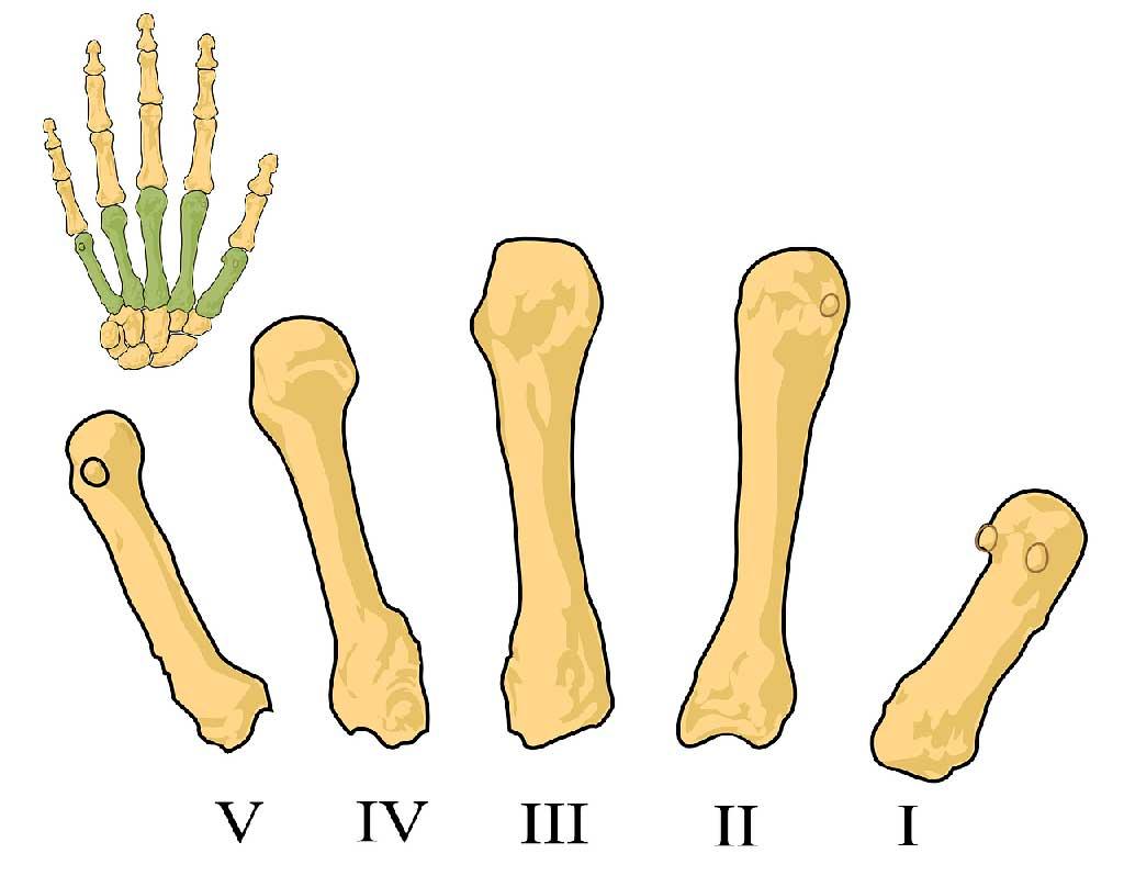 Evaluación basada en la CIF sobre lesiones de mano y su implicación en el desempeño ocupacional.